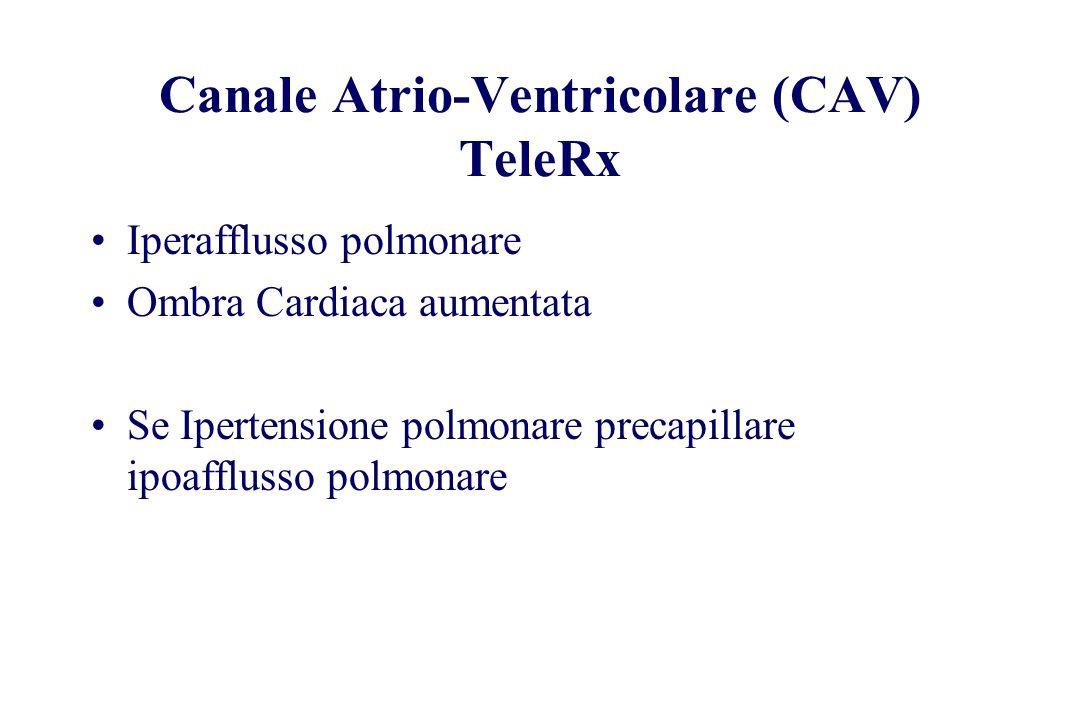 Canale Atrio-Ventricolare (CAV) TeleRx