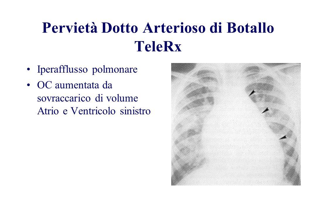 Pervietà Dotto Arterioso di Botallo TeleRx