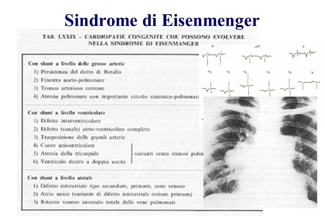 Sindrome di Eisenmenger