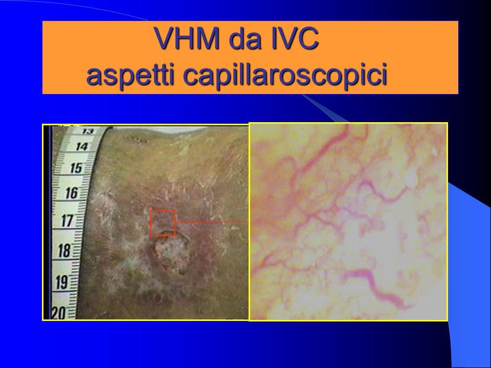VHM da IVC aspetti capillaroscopici