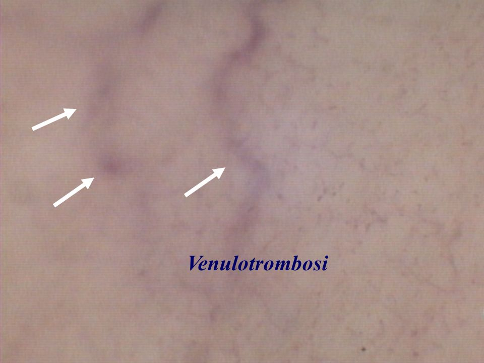 Dal semplice impilamento, dagli sludges si passa alle vere venulo trombosi ed