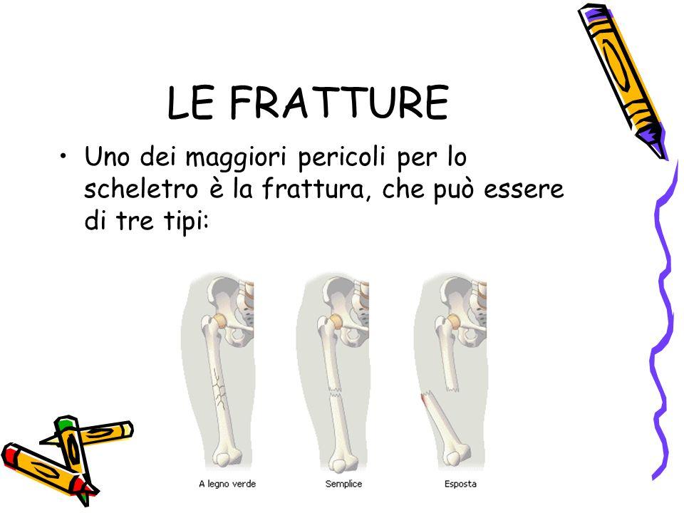 LE FRATTURE Uno dei maggiori pericoli per lo scheletro è la frattura, che può essere di tre tipi: