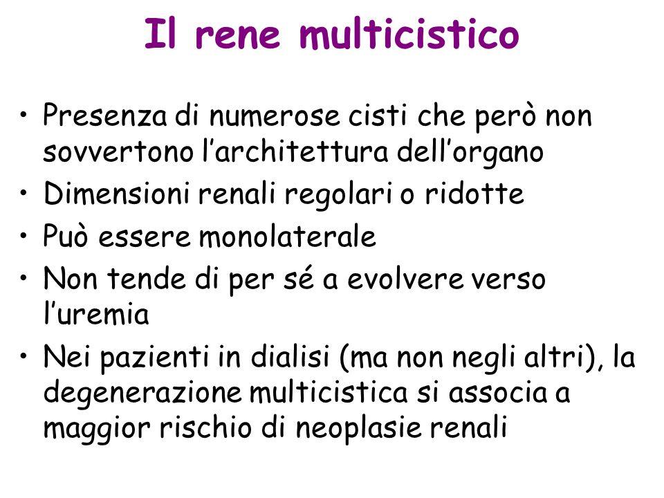 Il rene multicistico Presenza di numerose cisti che però non sovvertono l'architettura dell'organo.