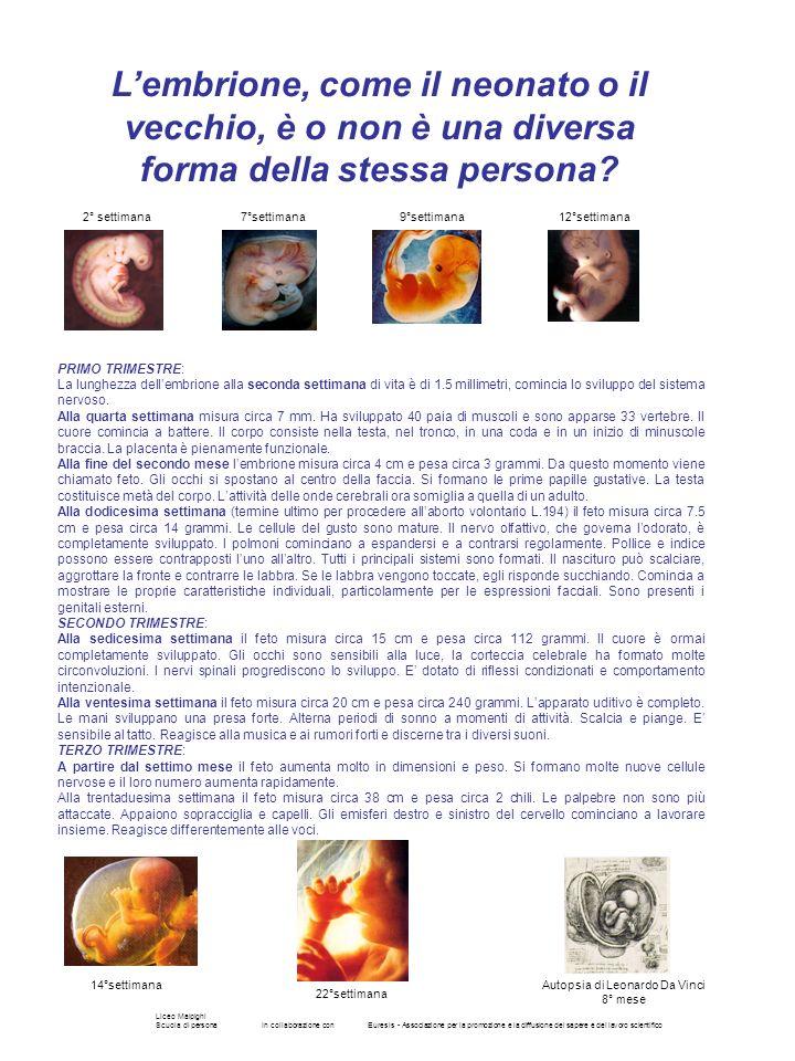 Autopsia di Leonardo Da Vinci