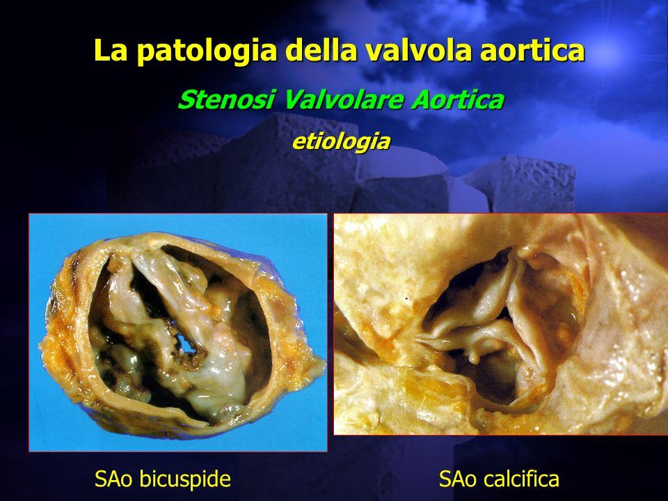 La patologia della valvola aortica Stenosi Valvolare Aortica