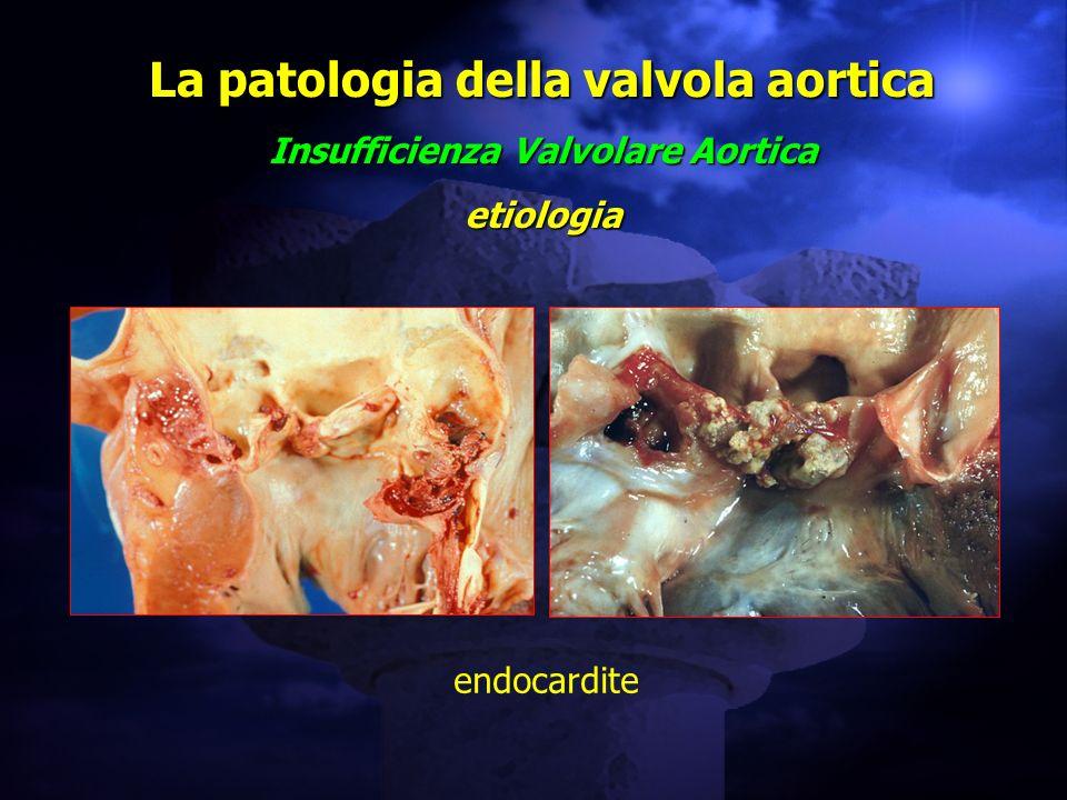 La patologia della valvola aortica Insufficienza Valvolare Aortica