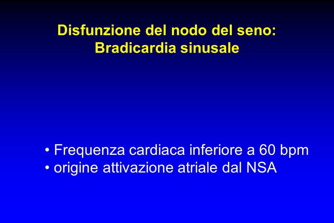 Disfunzione del nodo del seno: Bradicardia sinusale