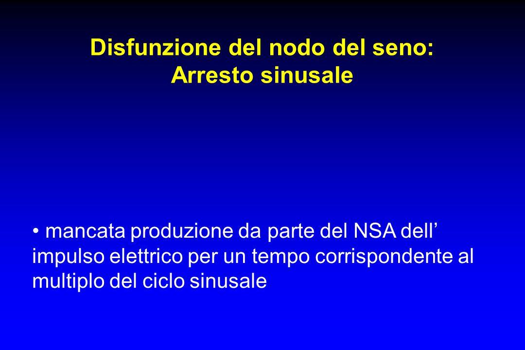 Disfunzione del nodo del seno: Arresto sinusale