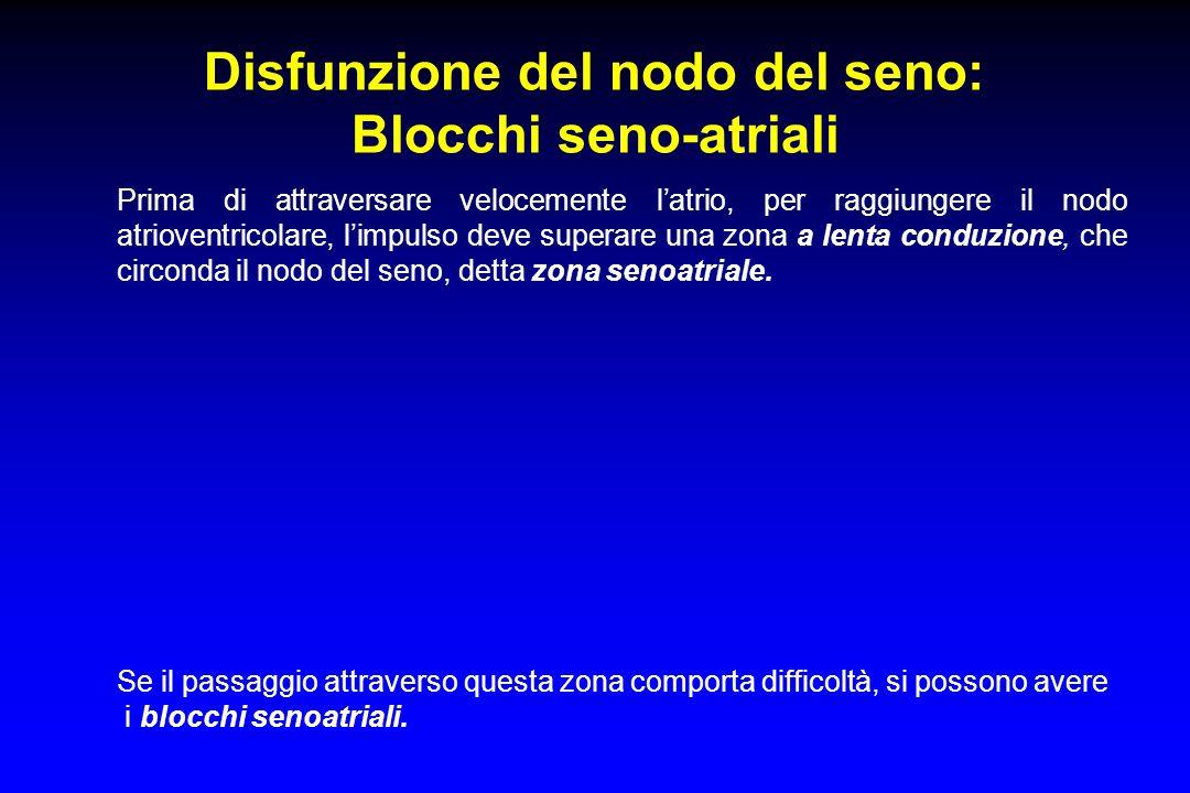 Disfunzione del nodo del seno: Blocchi seno-atriali