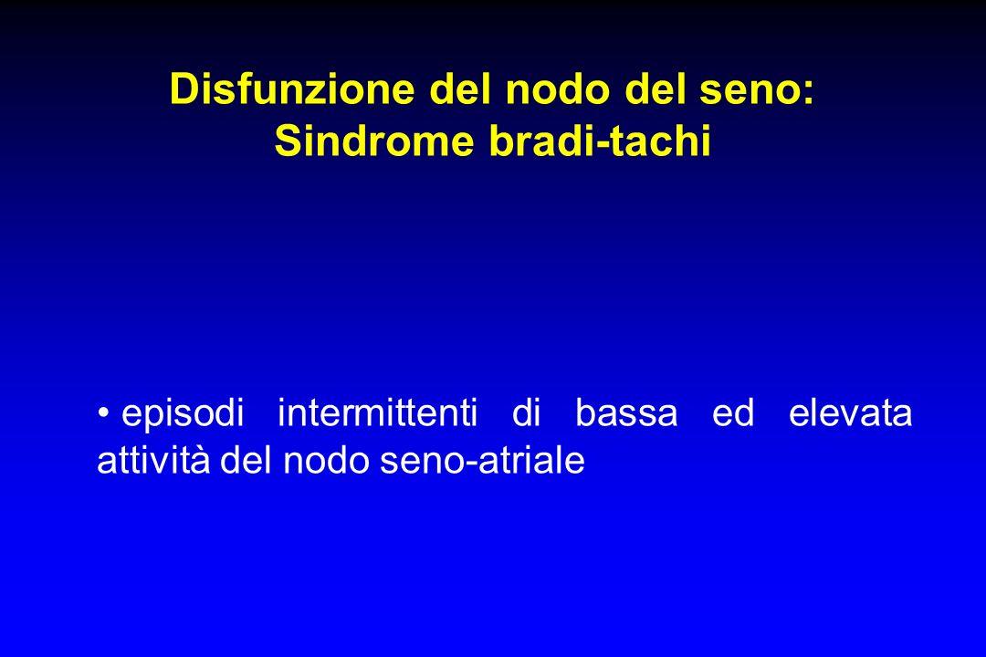 Disfunzione del nodo del seno: Sindrome bradi-tachi