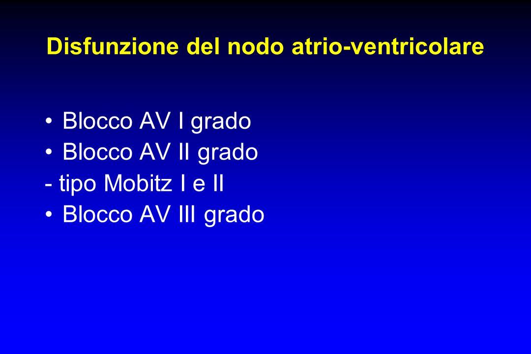 Disfunzione del nodo atrio-ventricolare