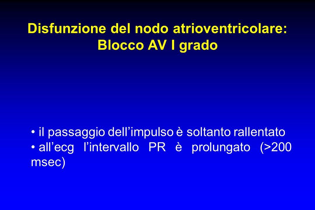 Disfunzione del nodo atrioventricolare: Blocco AV I grado