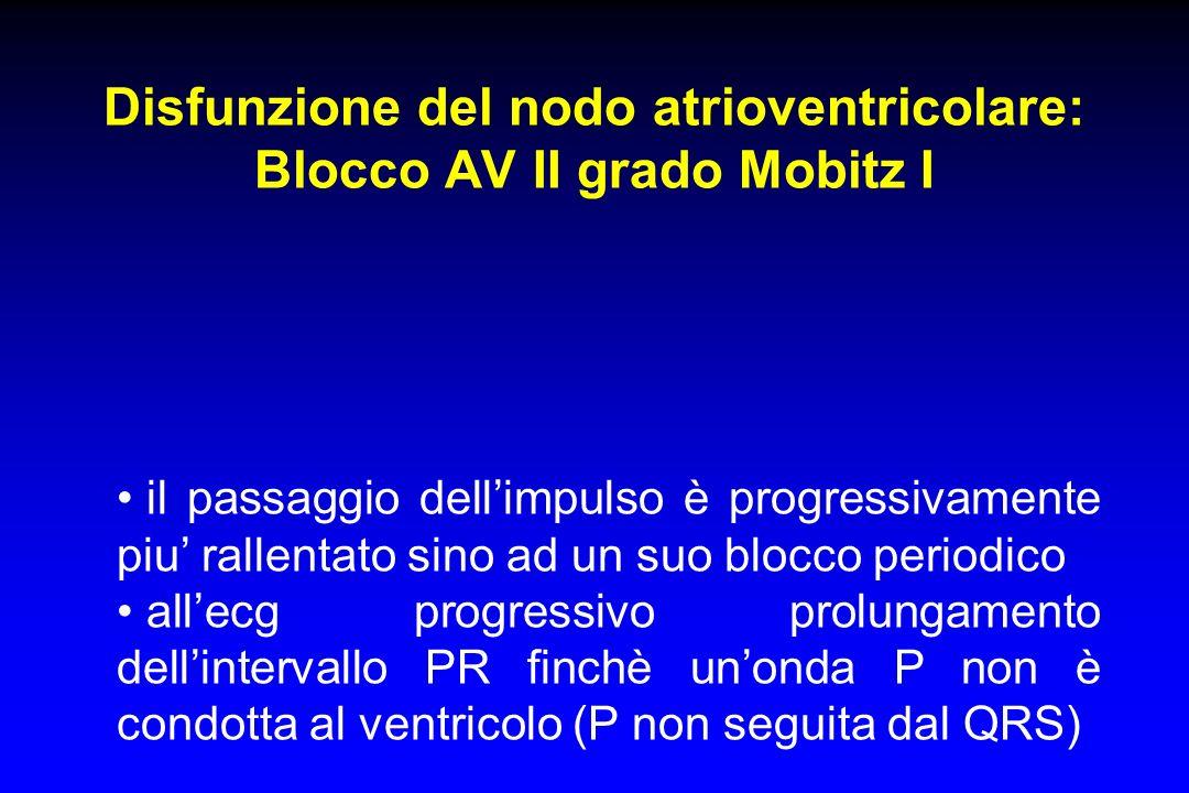 Disfunzione del nodo atrioventricolare: Blocco AV II grado Mobitz I