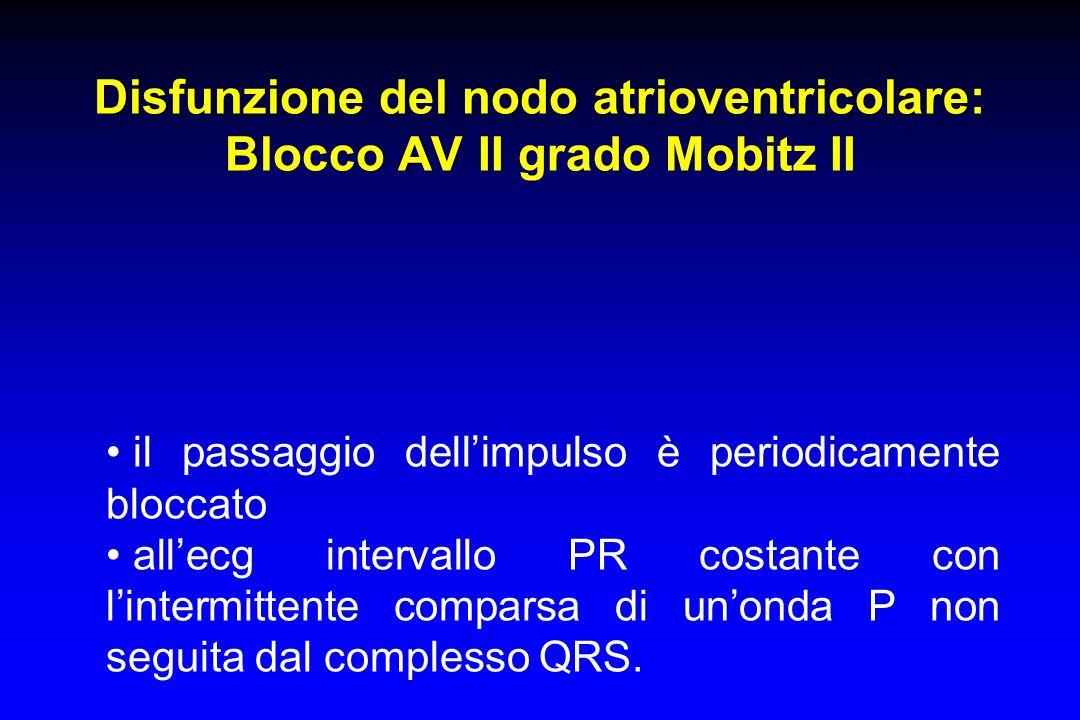 Disfunzione del nodo atrioventricolare: Blocco AV II grado Mobitz II