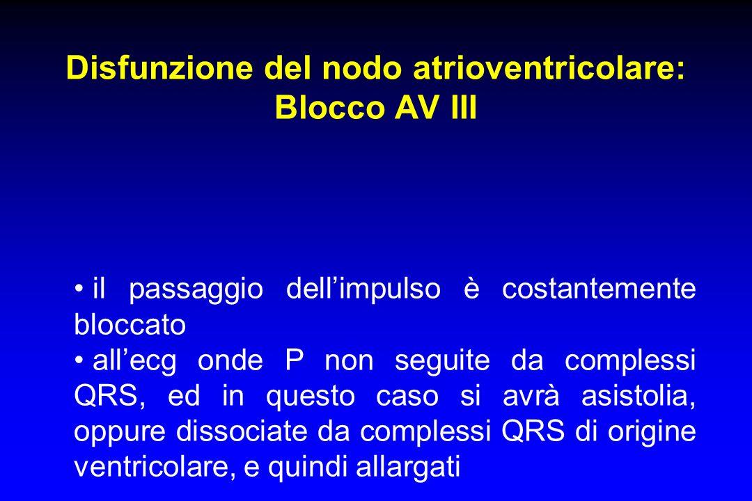 Disfunzione del nodo atrioventricolare: Blocco AV III