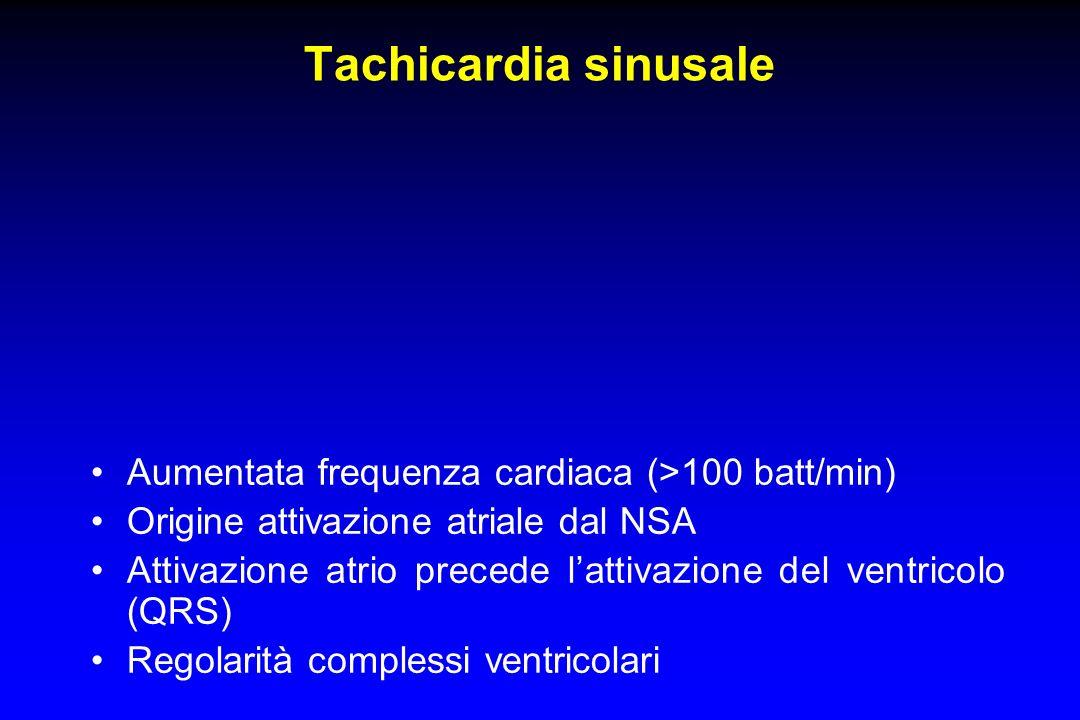Tachicardia sinusale Aumentata frequenza cardiaca (>100 batt/min)