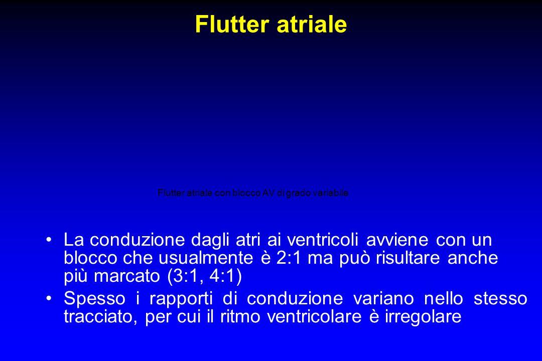 Flutter atriale con blocco AV di grado variabile