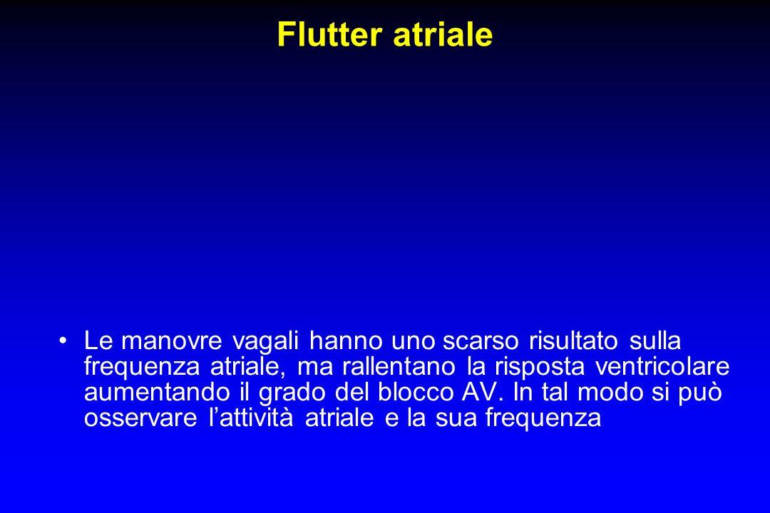 Flutter atriale