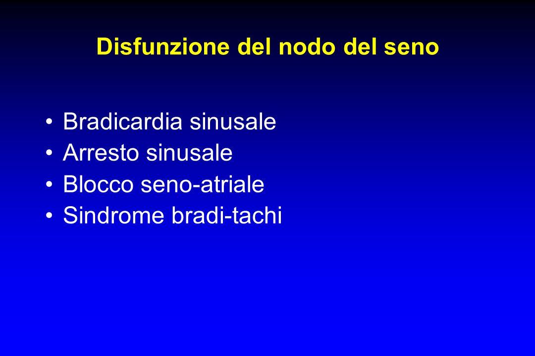 Disfunzione del nodo del seno
