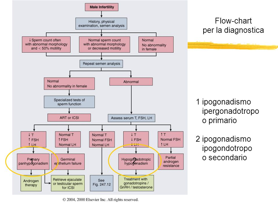 Flow-chartper la diagnostica. 1 ipogonadismo. ipergonadotropo. o primario. 2 ipogonadismo. ipogondotropo.