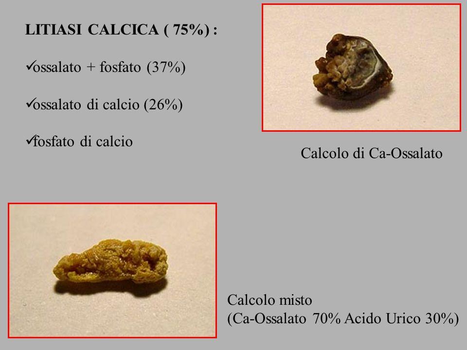 LITIASI CALCICA ( 75%) : ossalato + fosfato (37%) ossalato di calcio (26%) fosfato di calcio. Calcolo di Ca-Ossalato.