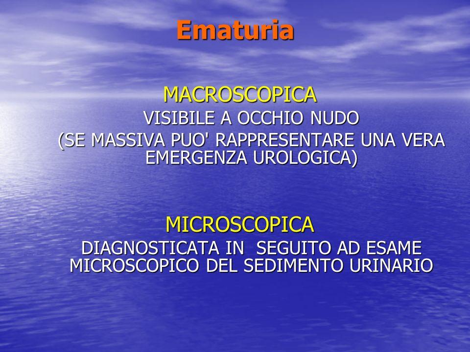 Ematuria MACROSCOPICA MICROSCOPICA VISIBILE A OCCHIO NUDO