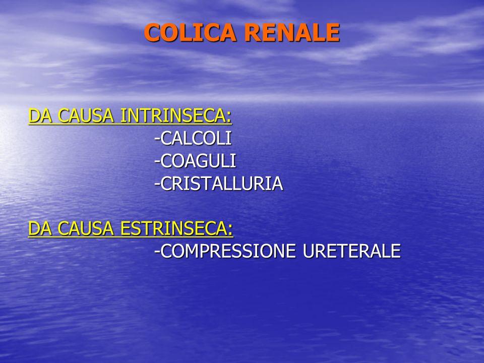 COLICA RENALE DA CAUSA INTRINSECA: -CALCOLI -COAGULI -CRISTALLURIA