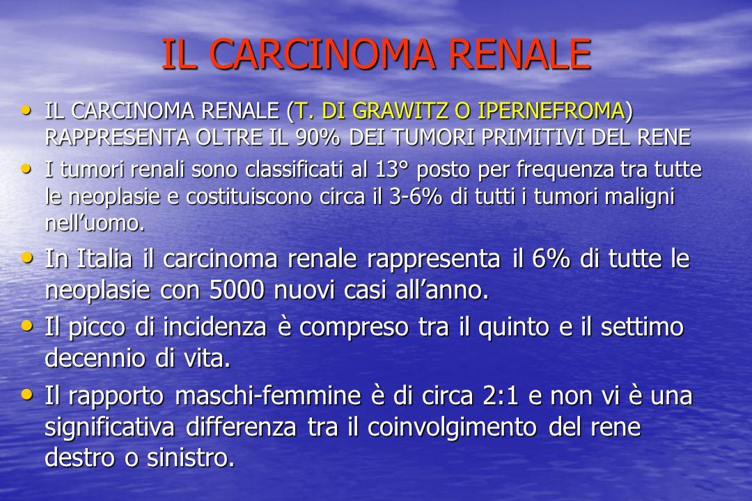 IL CARCINOMA RENALE IL CARCINOMA RENALE (T. DI GRAWITZ O IPERNEFROMA) RAPPRESENTA OLTRE IL 90% DEI TUMORI PRIMITIVI DEL RENE.