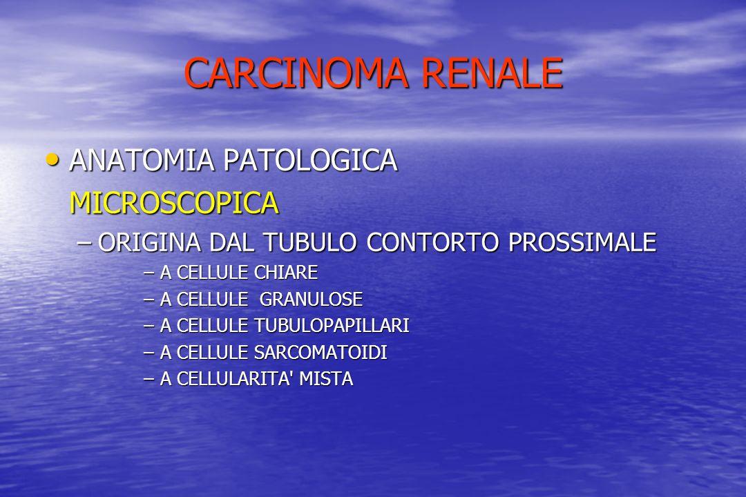 CARCINOMA RENALE ANATOMIA PATOLOGICA MICROSCOPICA