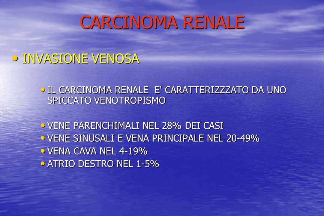 CARCINOMA RENALE INVASIONE VENOSA