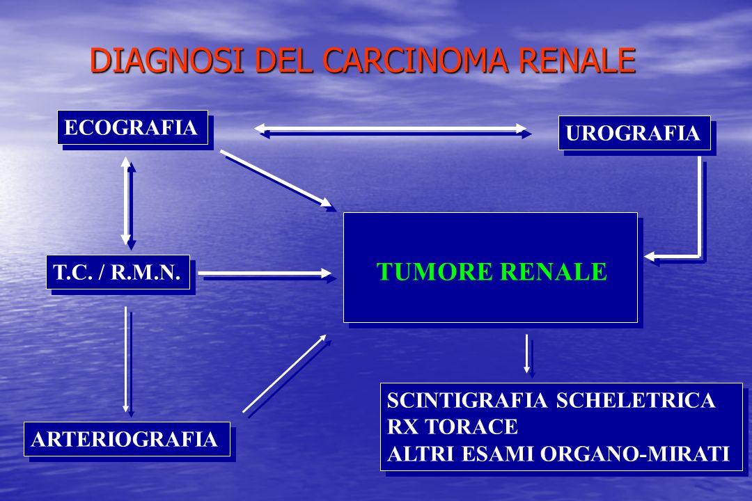 DIAGNOSI DEL CARCINOMA RENALE