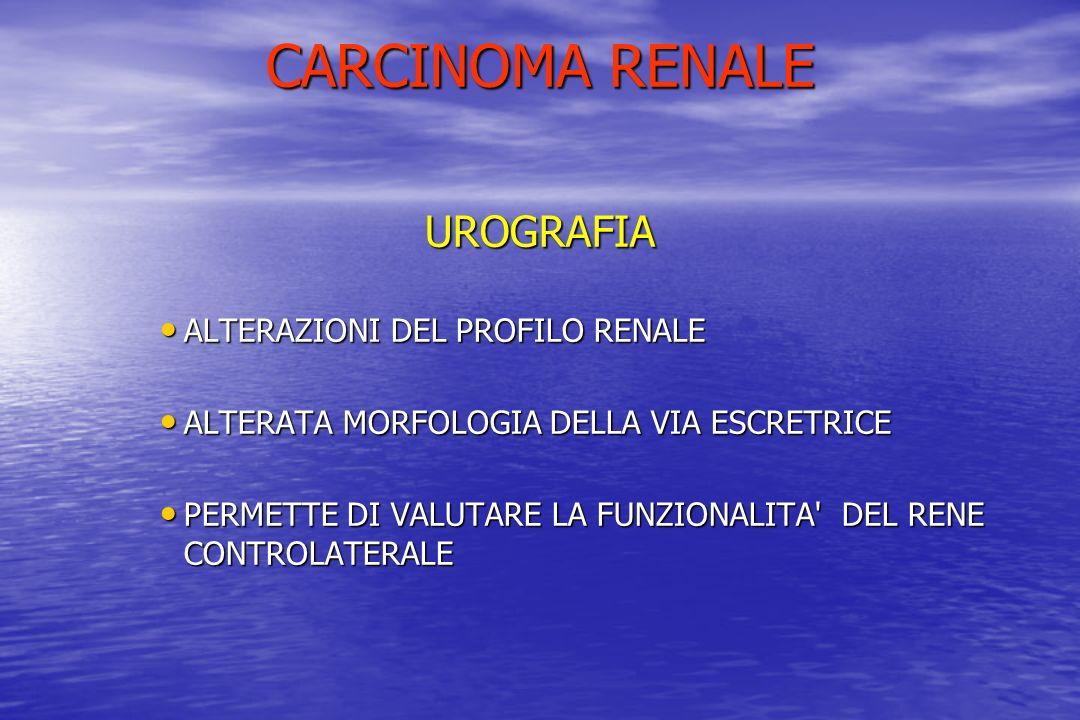 CARCINOMA RENALE UROGRAFIA ALTERAZIONI DEL PROFILO RENALE