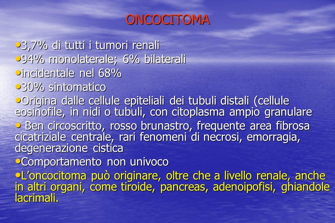 ONCOCITOMA 3,7% di tutti i tumori renali