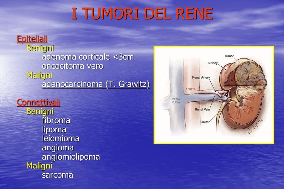 I TUMORI DEL RENE Epiteliali Benigni adenoma corticale <3cm