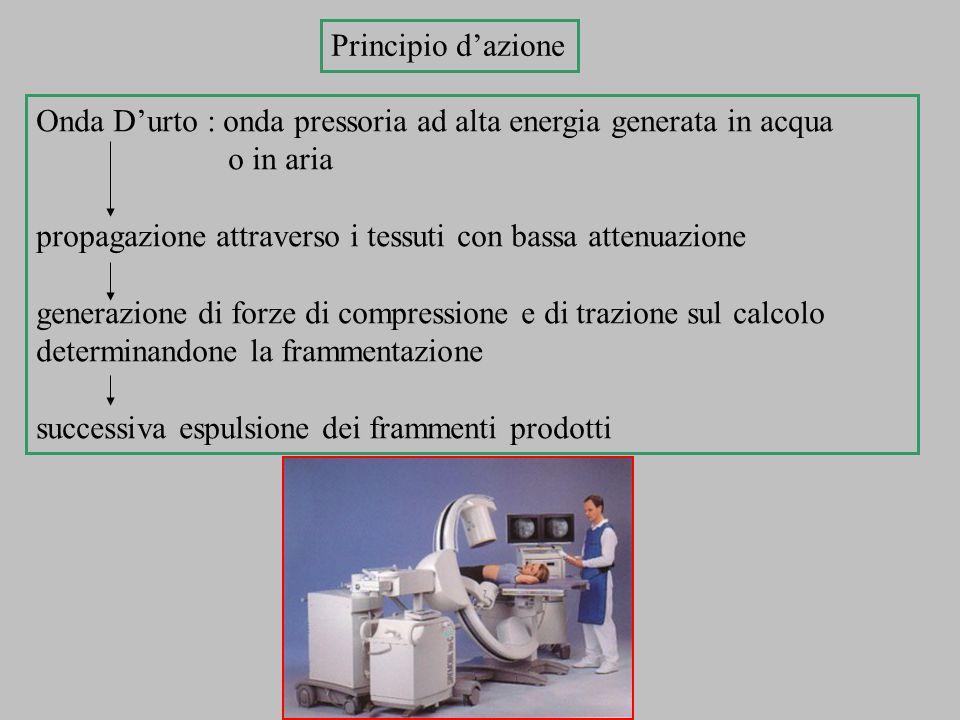 Principio d'azione Onda D'urto : onda pressoria ad alta energia generata in acqua. o in aria.