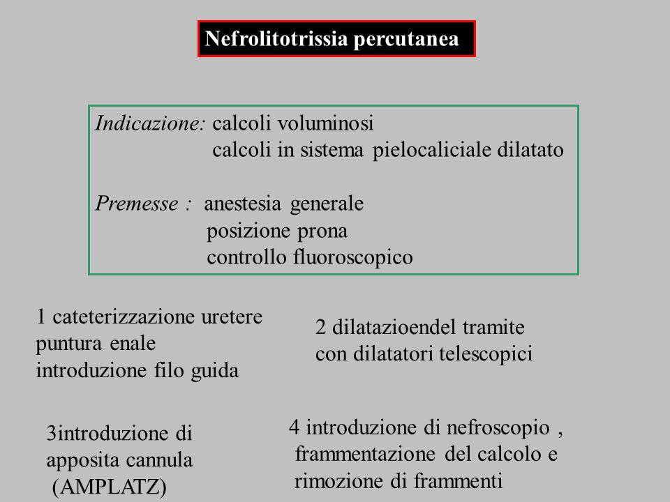 Nefrolitotrissia percutanea