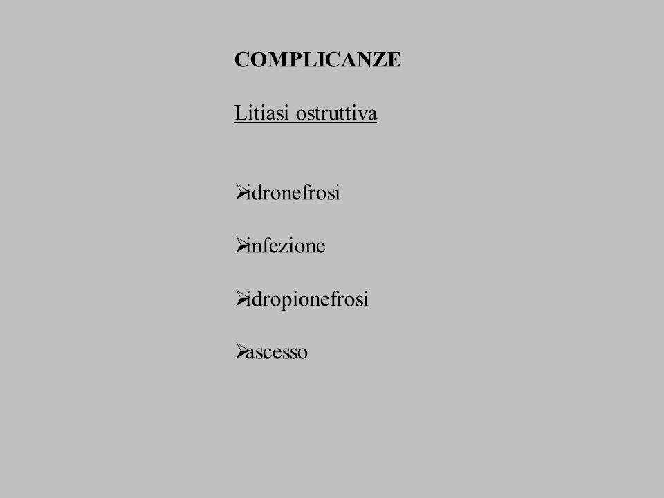 COMPLICANZE Litiasi ostruttiva idronefrosi infezione idropionefrosi ascesso