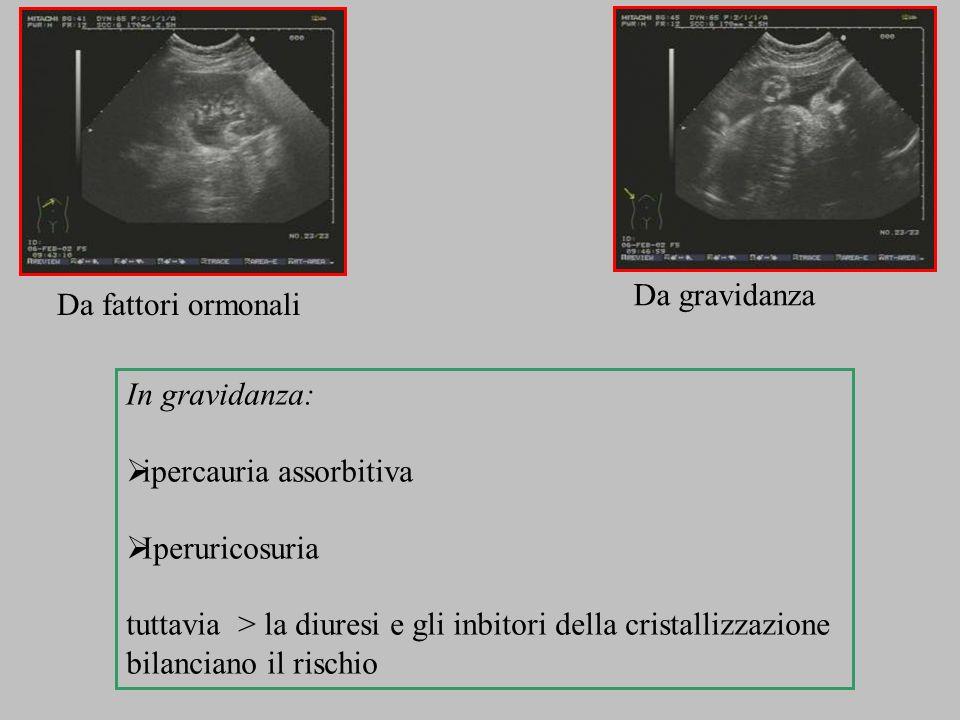 Da gravidanza Da fattori ormonali. In gravidanza: ipercauria assorbitiva. Iperuricosuria.