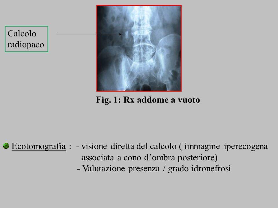 Calcolo radiopaco. Fig. 1: Rx addome a vuoto. Ecotomografia : - visione diretta del calcolo ( immagine iperecogena.