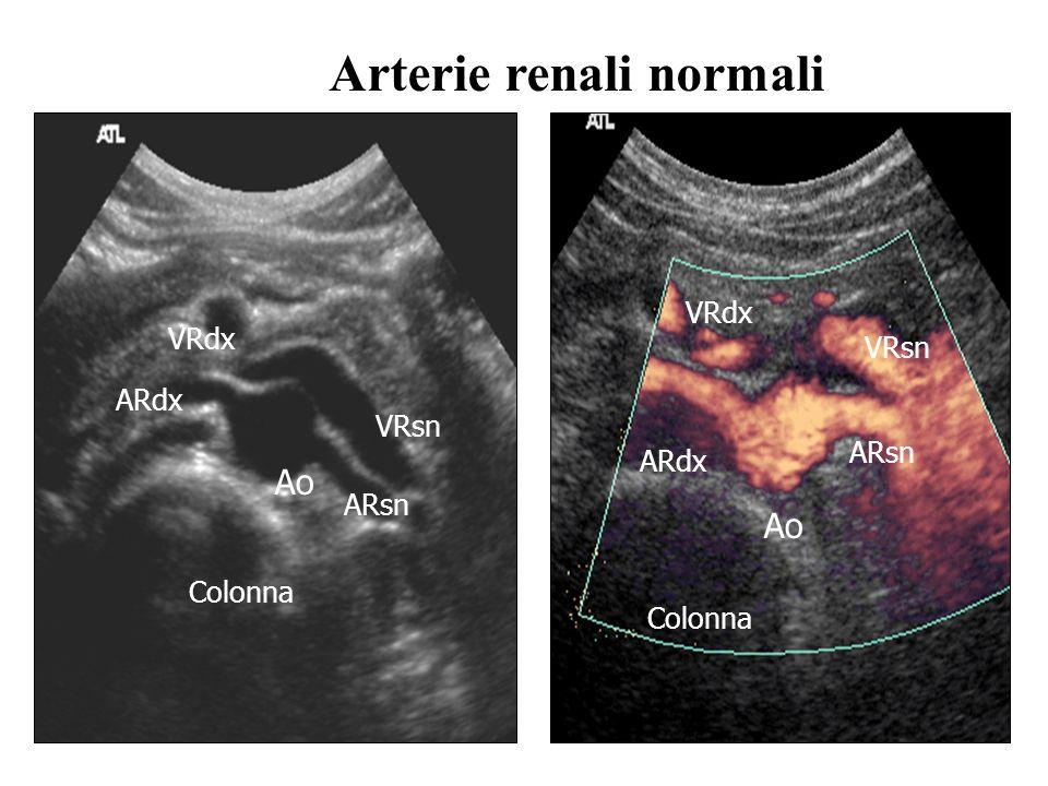 Arterie renali normali