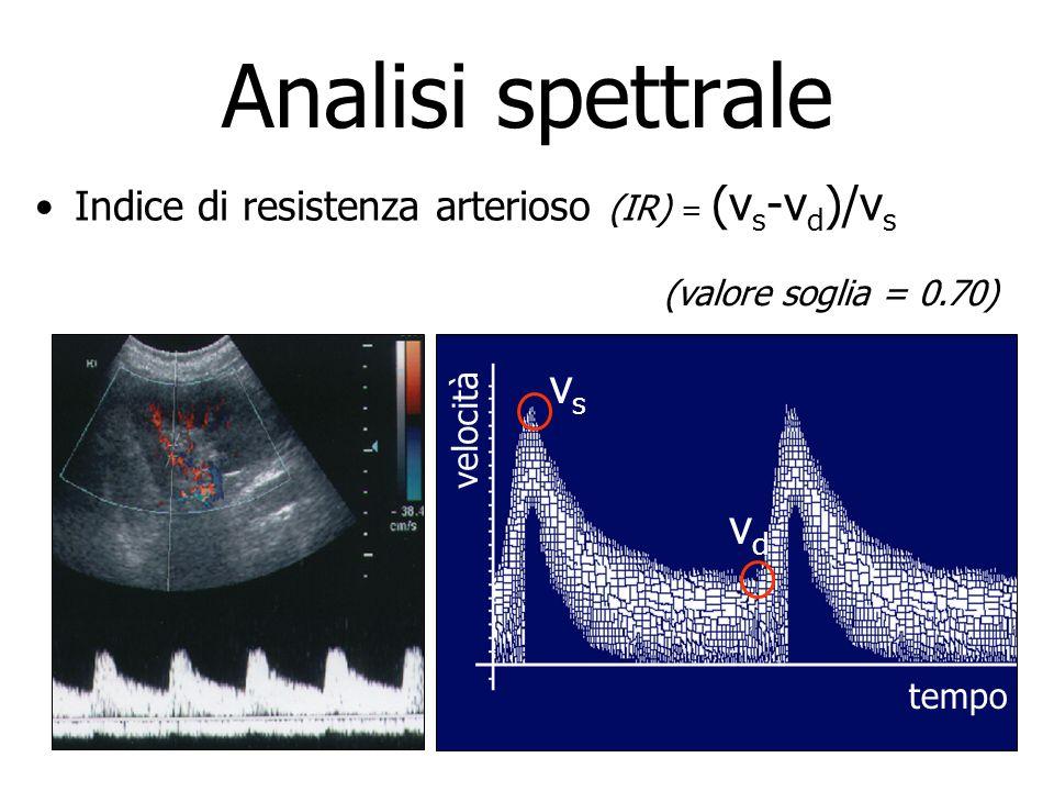 Analisi spettrale vs vd