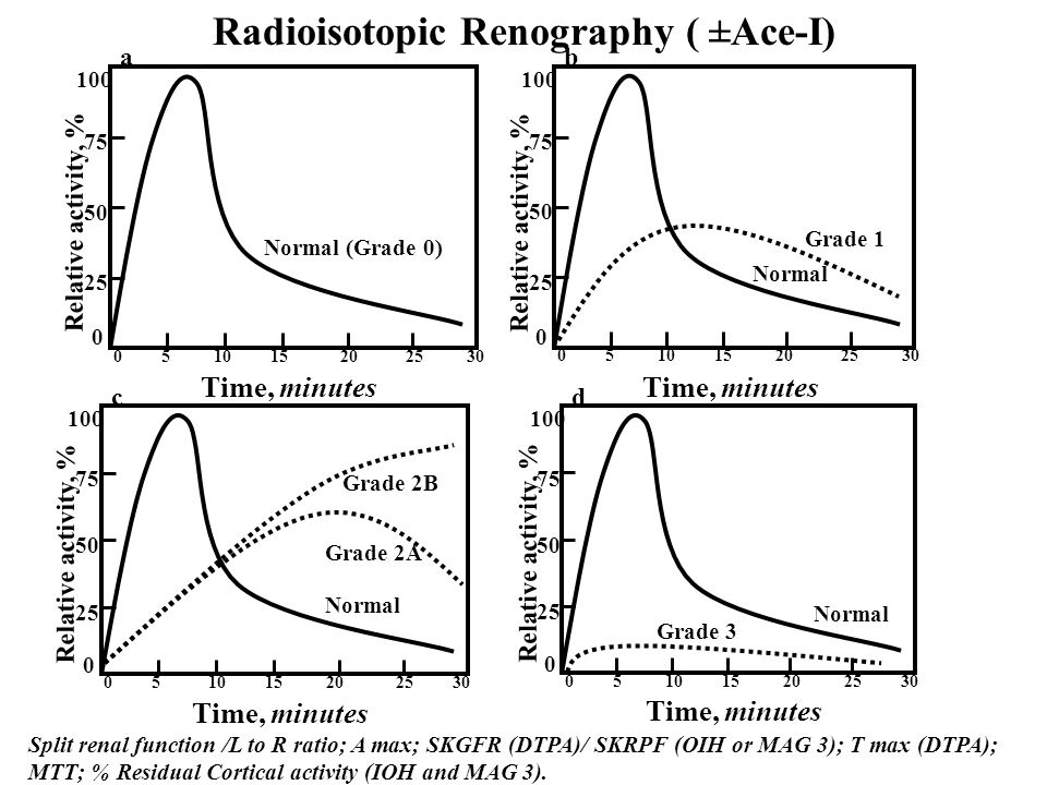 Radioisotopic Renography ( ±Ace-I)