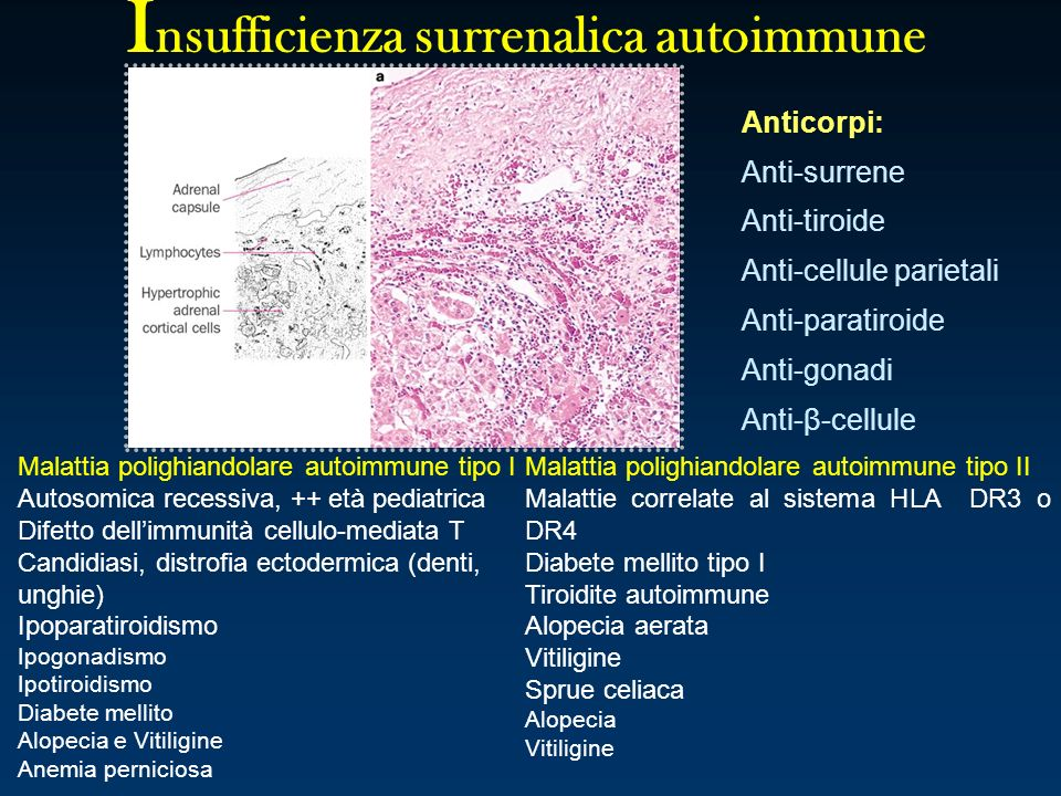 Insufficienza surrenalica autoimmune