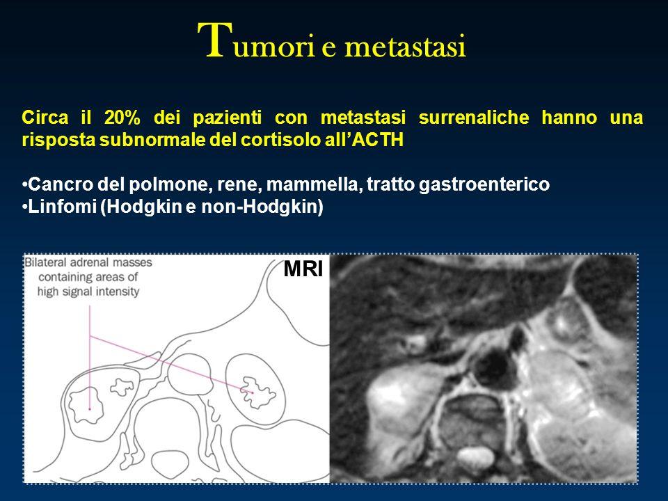 Tumori e metastasi Circa il 20% dei pazienti con metastasi surrenaliche hanno una risposta subnormale del cortisolo all'ACTH.
