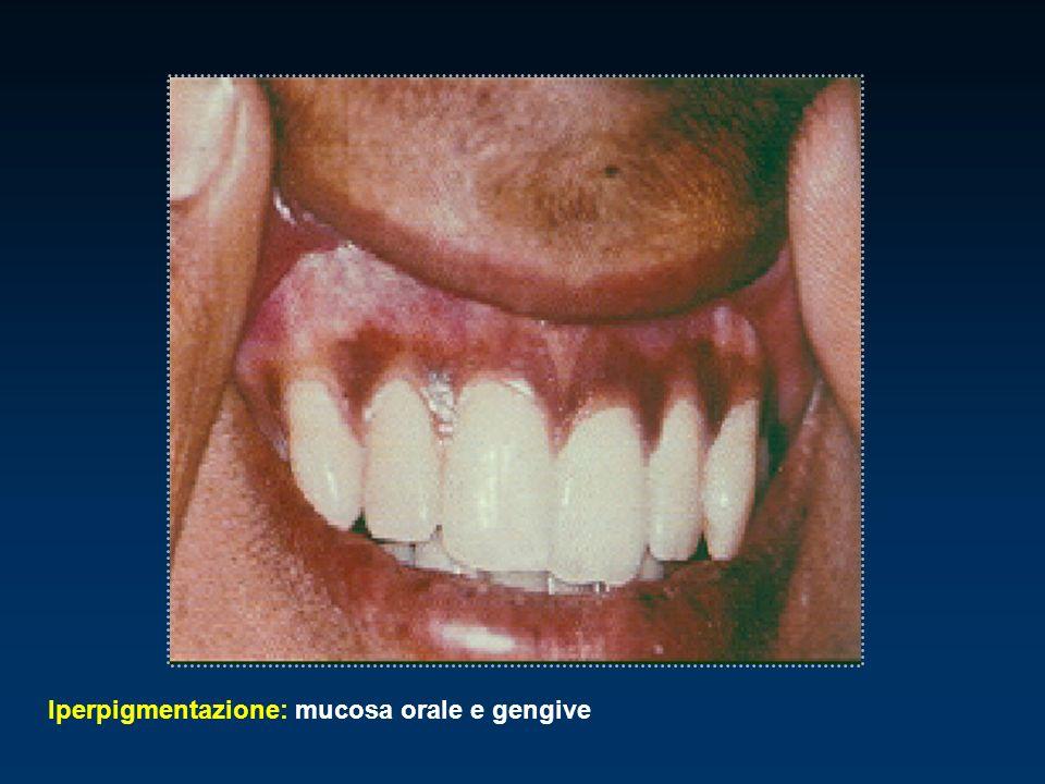Iperpigmentazione: mucosa orale e gengive