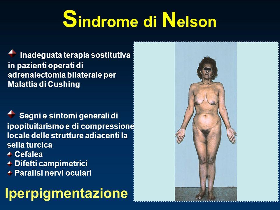 Sindrome di Nelson Iperpigmentazione