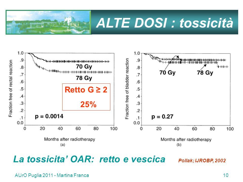 ALTE DOSI : tossicità Retto G ≥ 2. 25% La tossicita' OAR: retto e vescica Pollak; IJROBP, 2002.