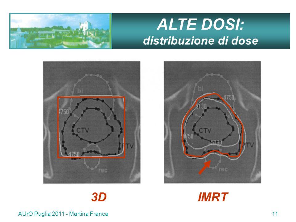 ALTE DOSI: 3D IMRT distribuzione di dose