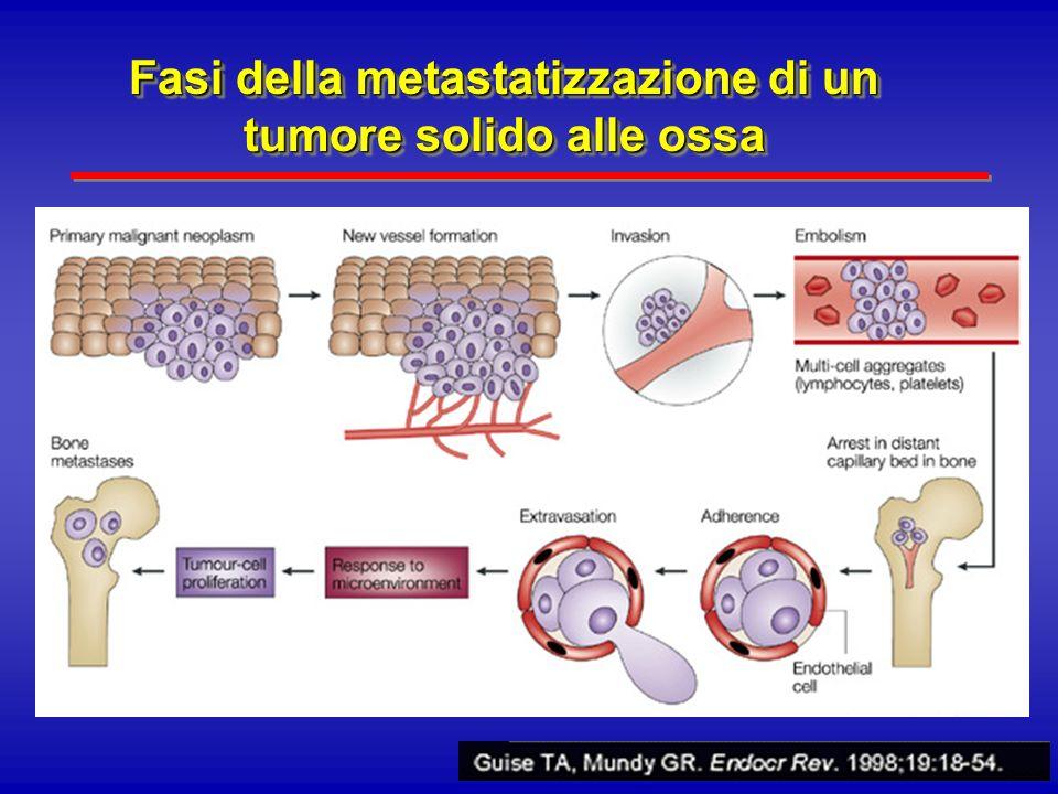Fasi della metastatizzazione di un tumore solido alle ossa