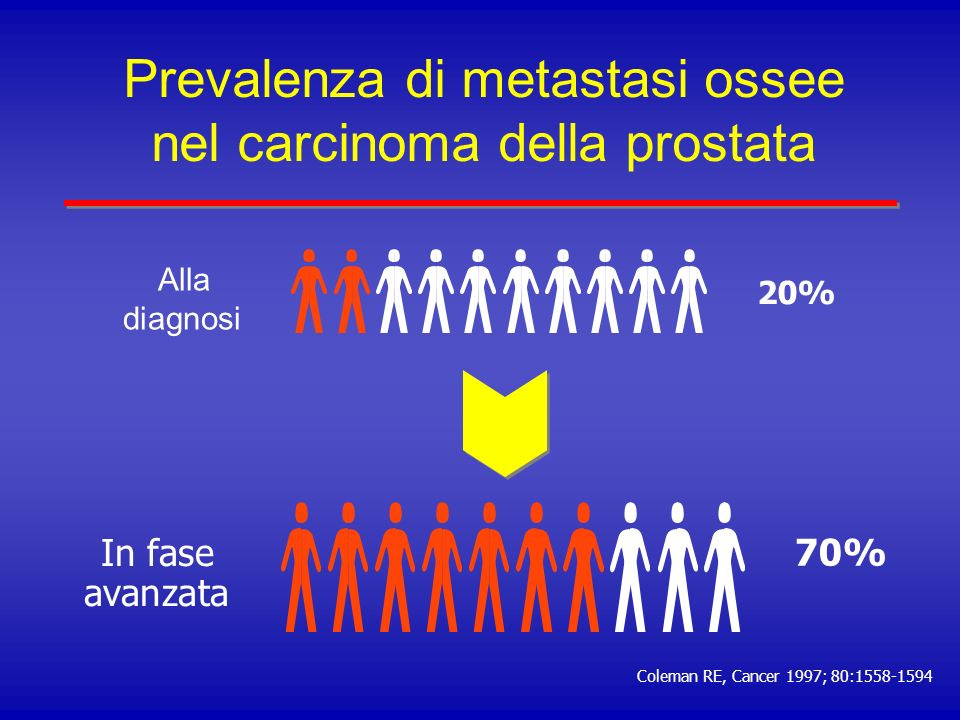 Prevalenza di metastasi ossee nel carcinoma della prostata